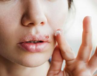 Kā cīnīties ar aukstumpumpām? Farmaceita ieteikumi